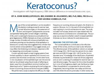 EYE CLINIC Epithelium as an Indicator for Early Keratoconus 001